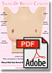 PDF - Signs Of Breast Cancer Poster For Print