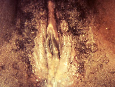 images of herpes in the vagina