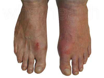 Gout of the toe a common affected area