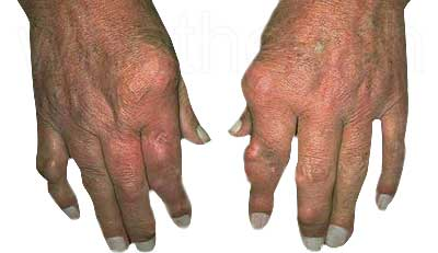 Patients gout affected hands