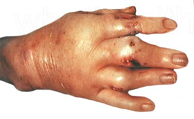 Severe inflammation of a gout affected hand