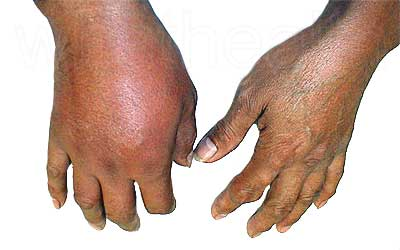 Inflammation of a patients right hand