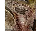 Photo Of The Prostate Gland