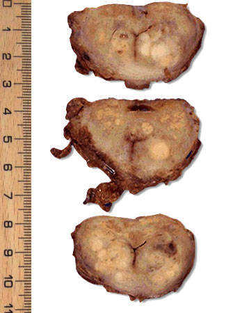 Lesions On Removed Prostate Gland