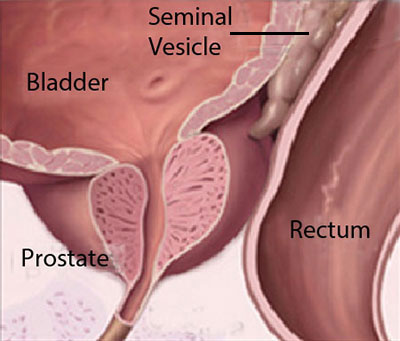 Diagram Showing The Prostate Gland Below The Bladder