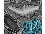 Picture Of An Image Scan Showing An Enlarged Prostate Gland