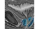 Picture Of An Image Scan Of A Healthy Prostate Gland