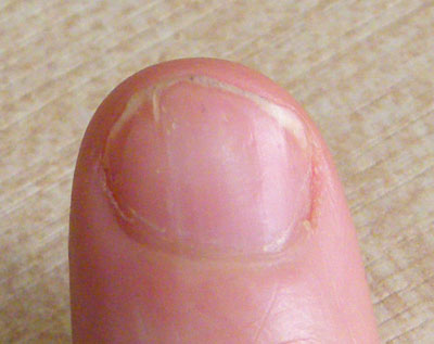 Psoriasis On The Finger Nail