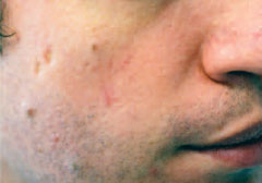 Post rosacea treatment
